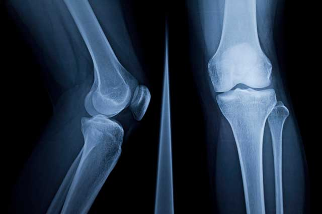 Hip and Knee - Oxford University Hospitals